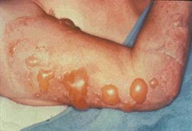 how to treat a second degree burn with open blister