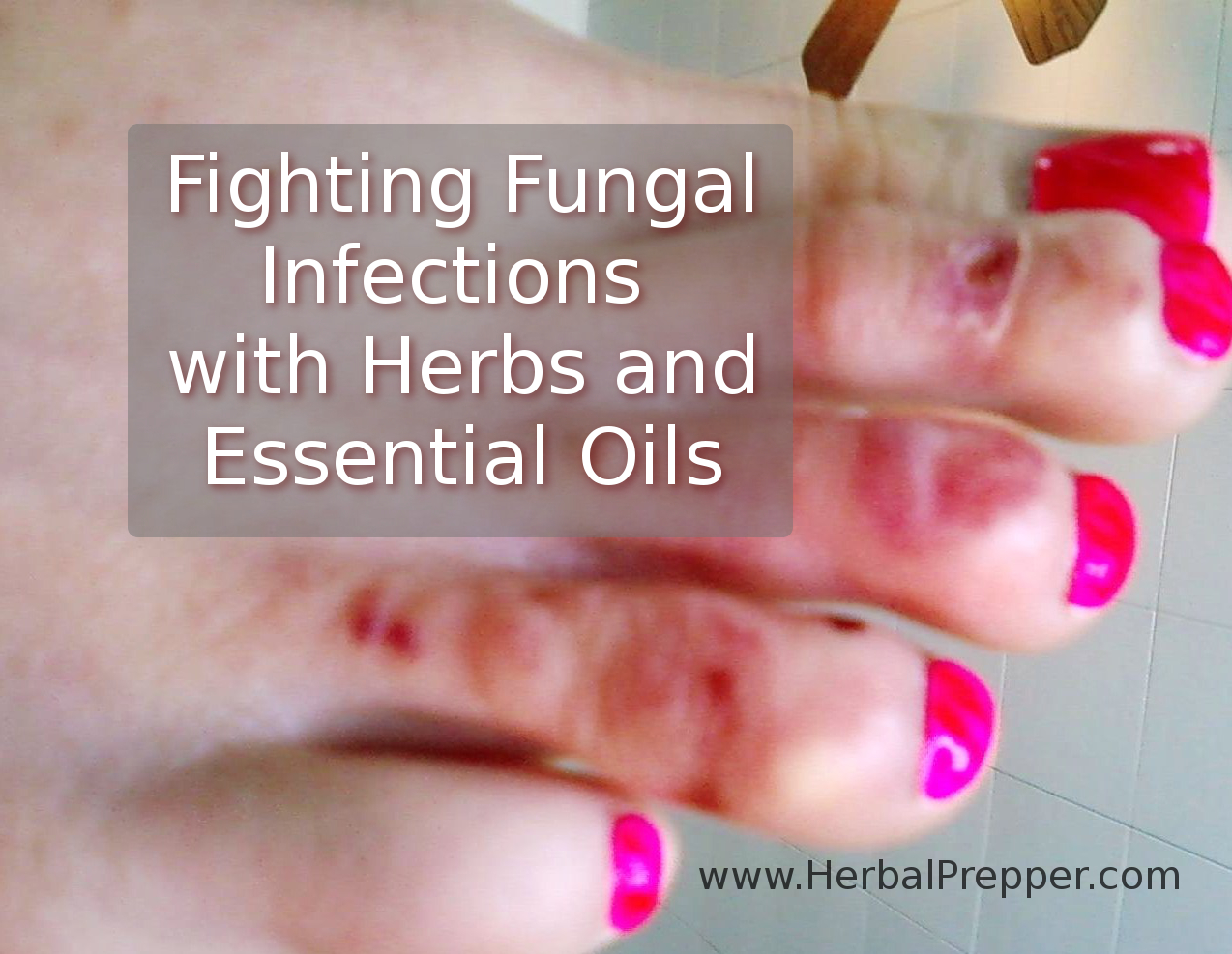 Fighting Fungal Infections with Herbs - Herbal Prepper